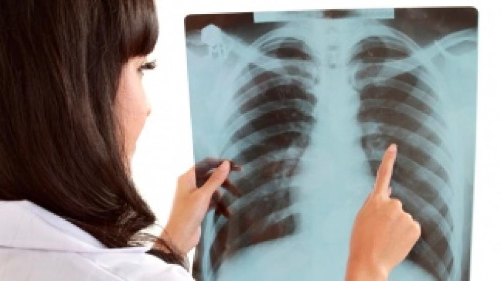 pulmón.jpg