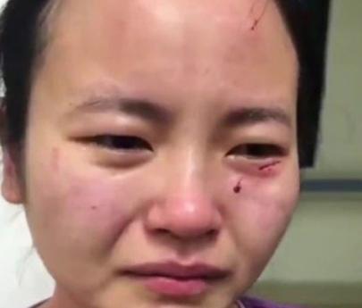 Coronavirus: un paciente contagiado golpeó y mordió en la cara a una enfermera para escapar de la cuarentena