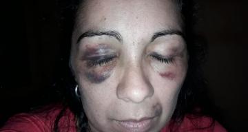 Mujer denunció que fue golpeada frente a sus hijas por su ex pareja