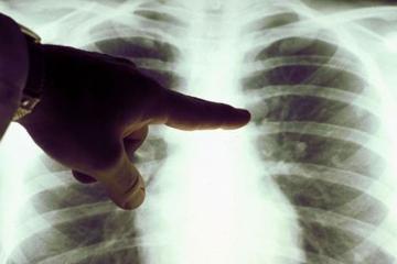 cancer de pulmon.jpg