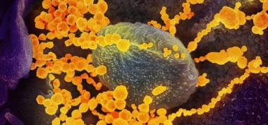Genoma Covid.jpg
